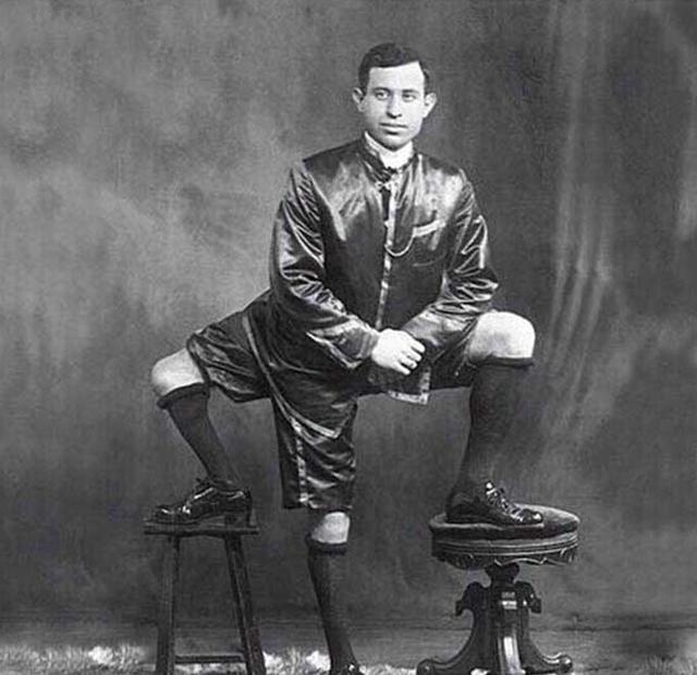 全球科学趣闻:科学无法解释的奇人,三条腿,头旋转180度! - cccasamslk - 大内高手的博客